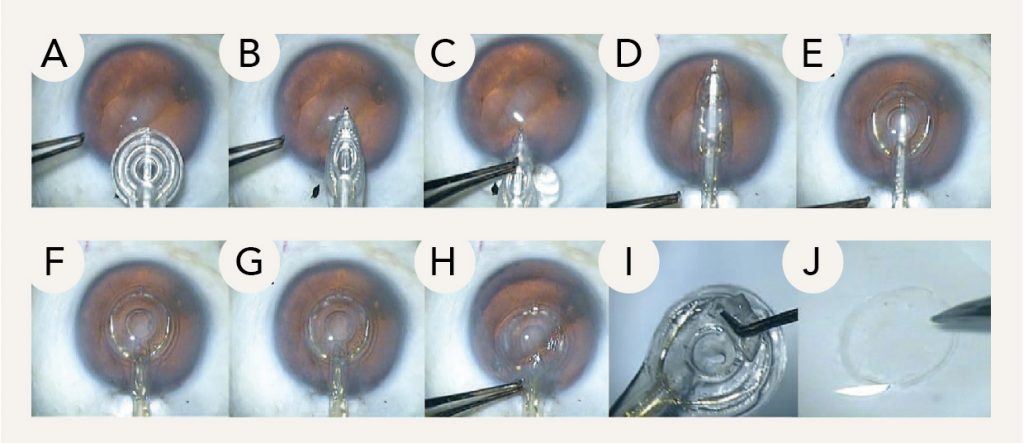 The Zepto capsulotomy tip can collapse to enter the primary corneal incision (A–D), then re-expand to a circle within the anterior chamber (E). Once aligned over the visual axis (F), suction is used to appose the nitinol ring against the capsule. Using a multipulse algorithm, precision-pulse technology is used to cause rapid phase transition of the water molecules underneath the ring, cleaving the capsule membrane and simultaneously creating all 360° of the capsulotomy (G). The tip can then be collapsed and removed (H) along with the excised tissue (I–J).