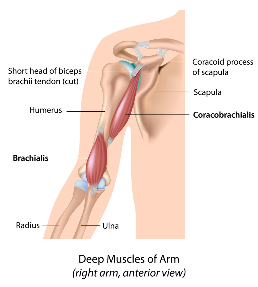Leading The Way In The Treatment Of Scapula Winging